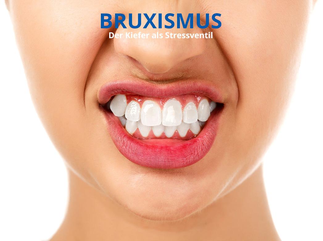 Bruxismus/ Zähneknirschen bei Craniomandibulärer Dysfunktion