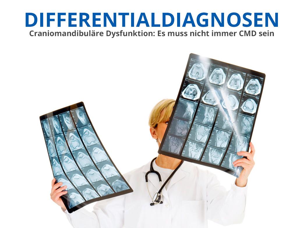 CMD-Differentialdiagnosen